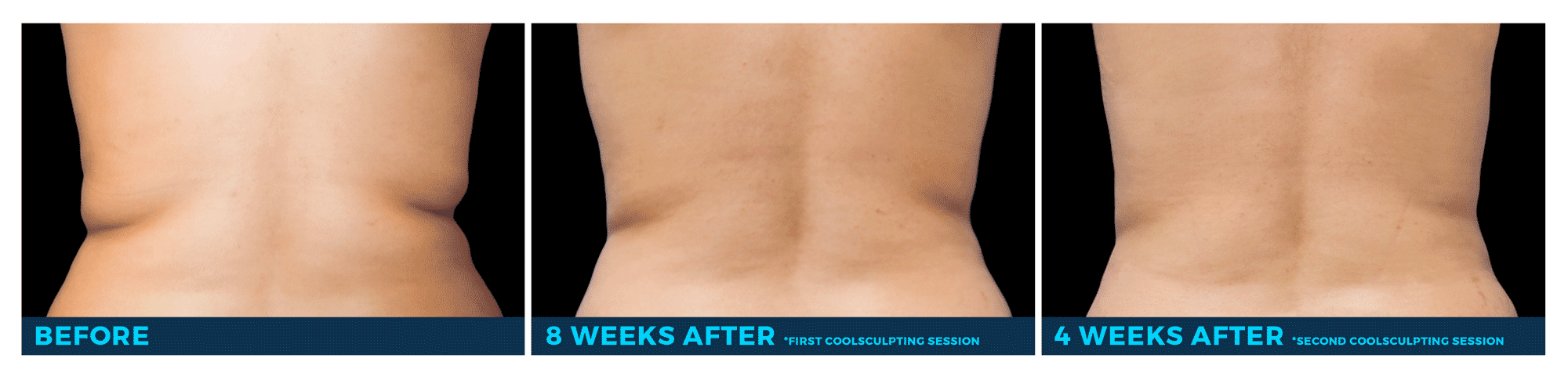 Coolsculpting At Home Results Review Home Co
